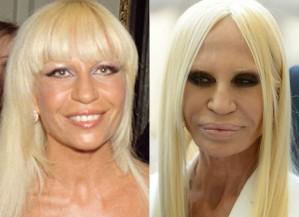 As piores plásticas das celebridades